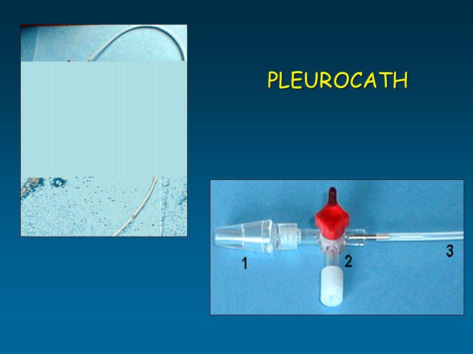 PLEUROCATH