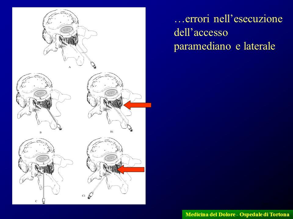 20 …errori nellesecuzione dellaccesso paramediano e laterale Medicina del Dolore - Ospedale di Tortona
