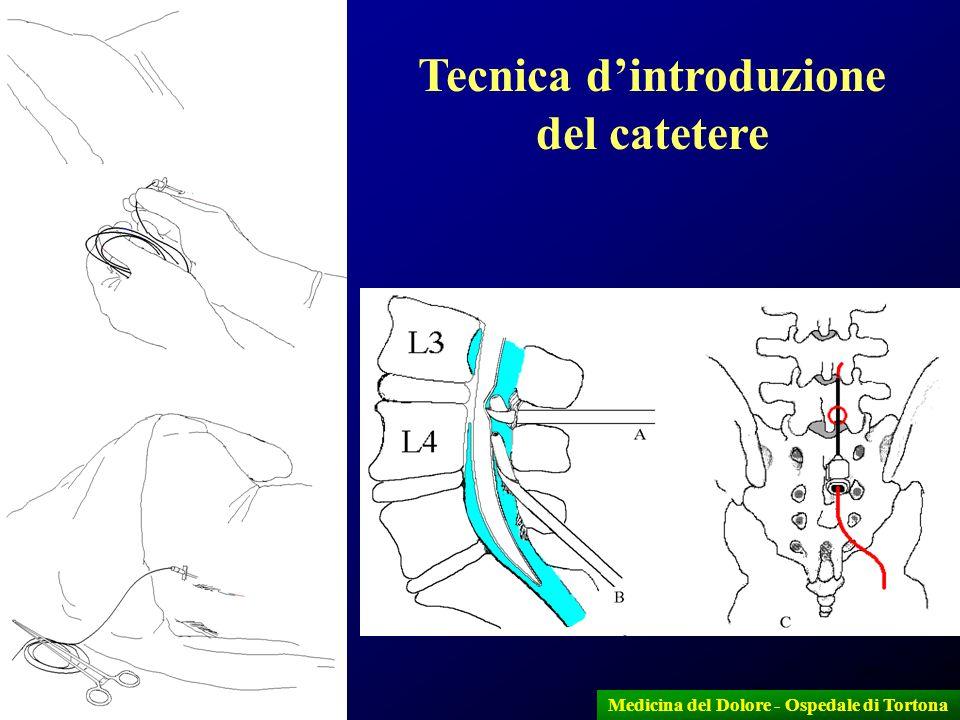 30 Tecnica dintroduzione del catetere Medicina del Dolore - Ospedale di Tortona