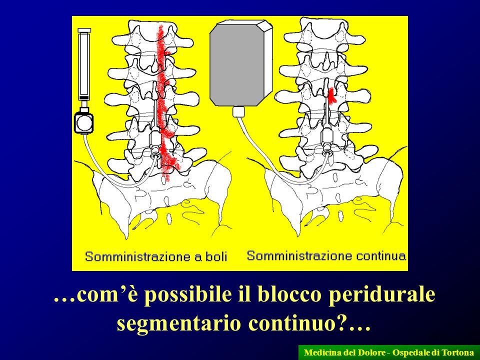 32 …comè possibile il blocco peridurale segmentario continuo?… Medicina del Dolore - Ospedale di Tortona