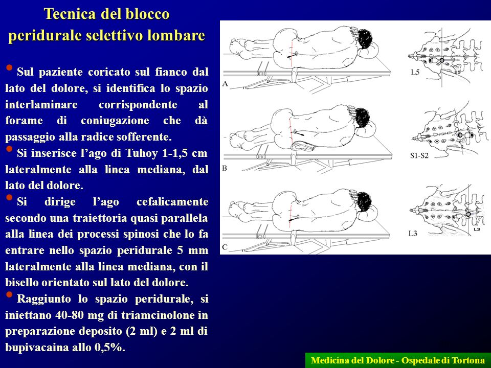 39 Tecnica del blocco peridurale selettivo lombare Sul paziente coricato sul fianco dal lato del dolore, si identifica lo spazio interlaminare corrisp