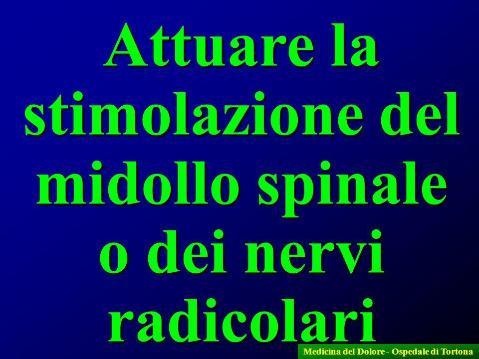 43 Attuare la stimolazione del midollo spinale o dei nervi radicolari Medicina del Dolore - Ospedale di Tortona