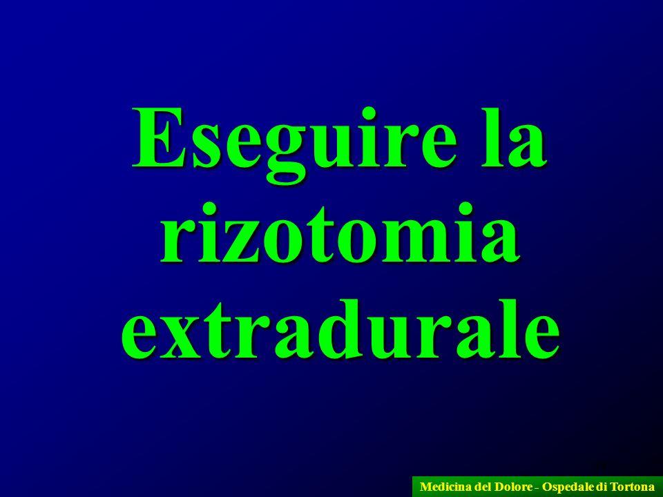 44 Eseguire la rizotomia extradurale Medicina del Dolore - Ospedale di Tortona