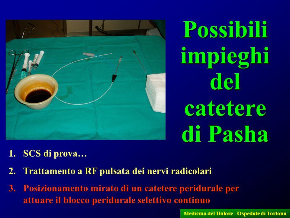 47 Medicina del Dolore - Ospedale di Tortona Possibili impieghi del catetere di Pasha 1.SCS di prova… 2.Trattamento a RF pulsata dei nervi radicolari