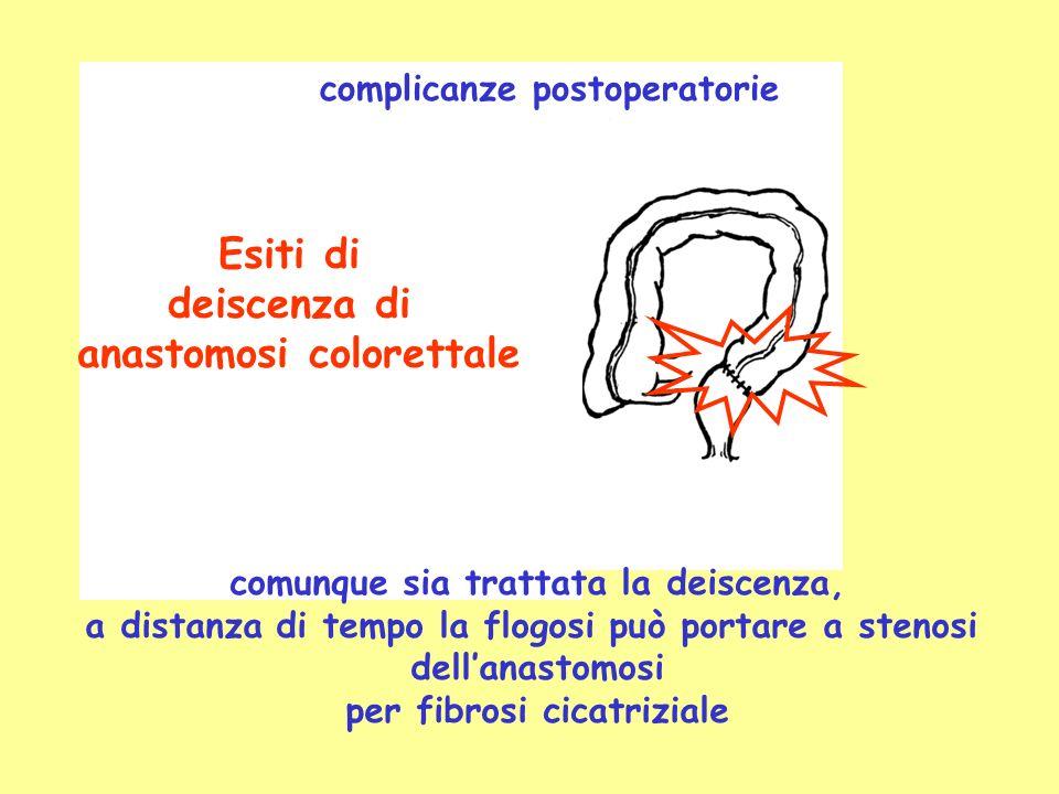 Esiti di deiscenza di anastomosi colorettale complicanze postoperatorie comunque sia trattata la deiscenza, a distanza di tempo la flogosi può portare a stenosi dellanastomosi per fibrosi cicatriziale