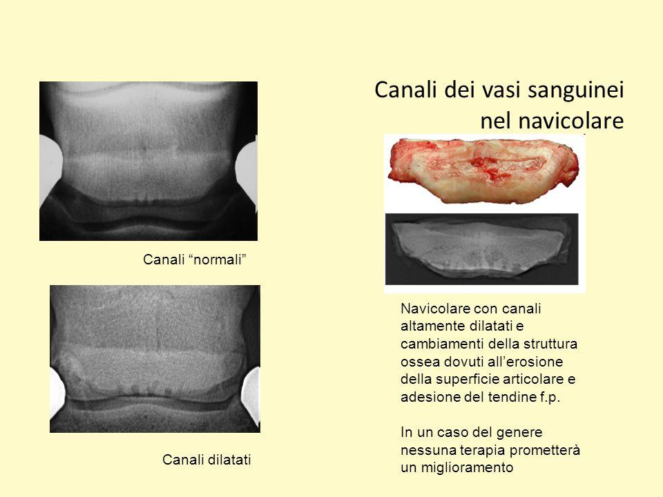 Canali dei vasi sanguinei nel navicolare Canali normali Canali dilatati Navicolare con canali altamente dilatati e cambiamenti della struttura ossea d