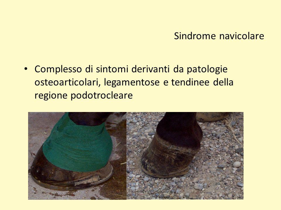 Sindrome navicolare Complesso di sintomi derivanti da patologie osteoarticolari, legamentose e tendinee della regione podotrocleare