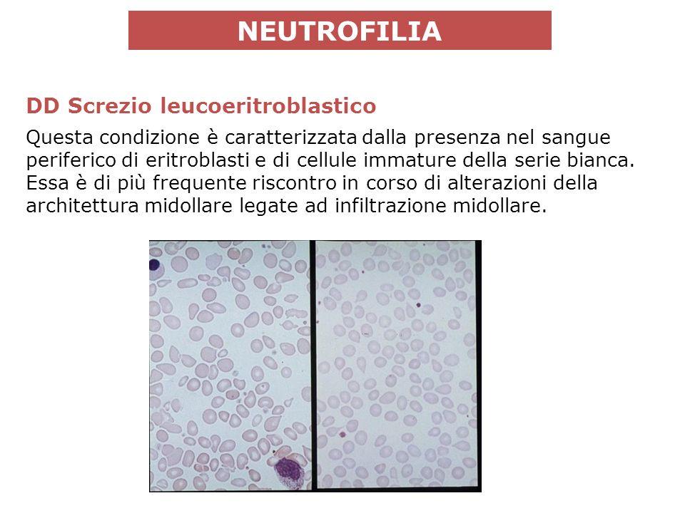 DD Screzio leucoeritroblastico Questa condizione è caratterizzata dalla presenza nel sangue periferico di eritroblasti e di cellule immature della serie bianca.
