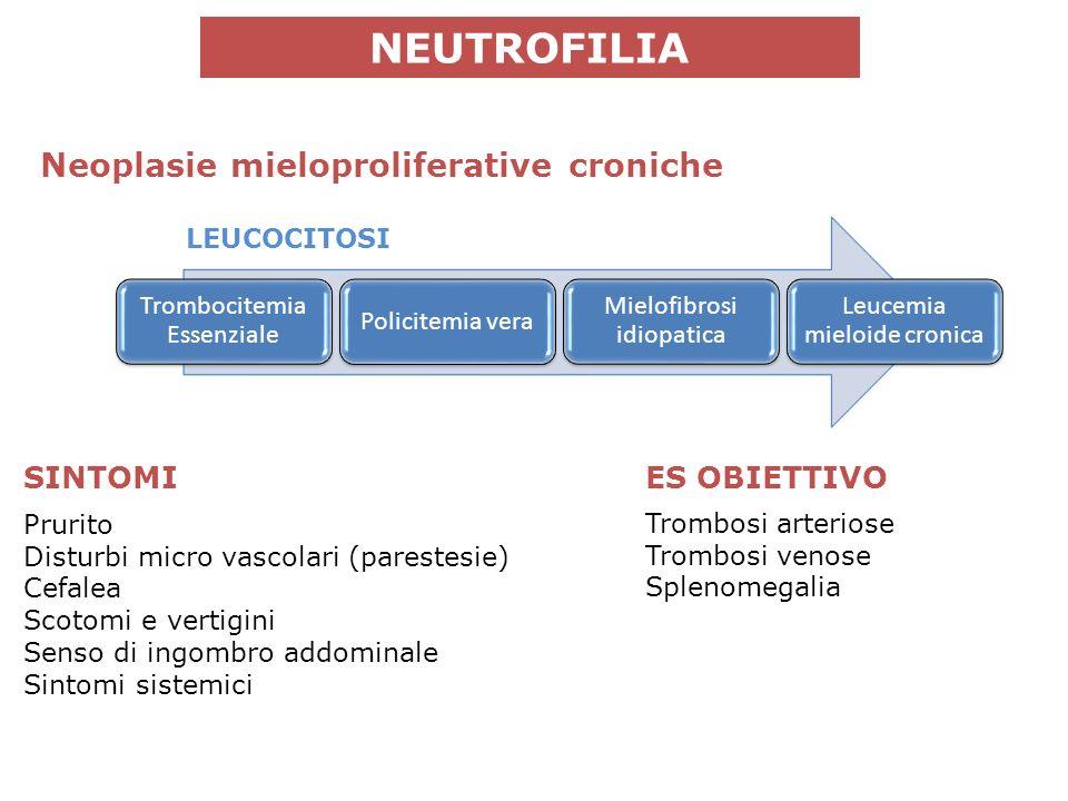 NEUTROFILIA Prurito Disturbi micro vascolari (parestesie) Cefalea Scotomi e vertigini Senso di ingombro addominale Sintomi sistemici Neoplasie mieloproliferative croniche Trombocitemia Essenziale Policitemia vera Mielofibrosi idiopatica Leucemia mieloide cronica SINTOMIES OBIETTIVO Trombosi arteriose Trombosi venose Splenomegalia LEUCOCITOSI
