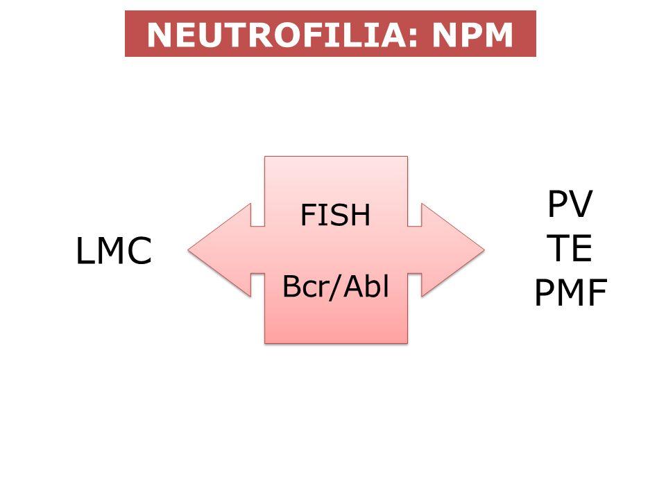 NEUTROFILIA: NPM FISH Bcr/Abl FISH Bcr/Abl LMC PV TE PMF