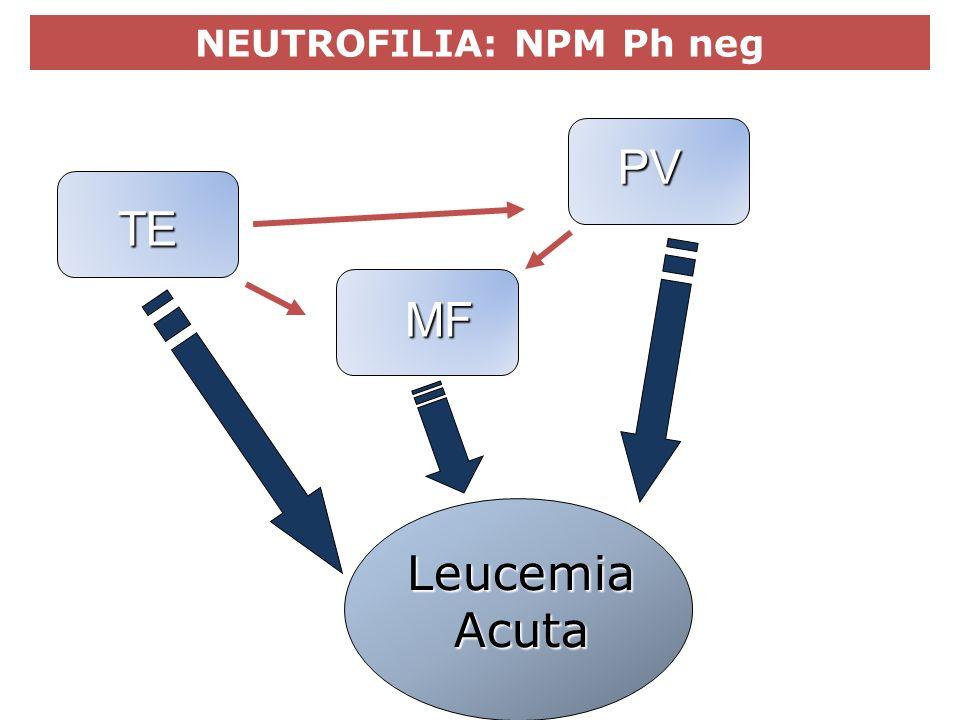 MPN Philadelphia-negativeTE PV MF Leucemia Acuta NEUTROFILIA: NPM Ph neg
