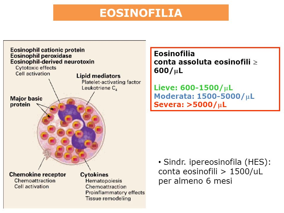 Eosinofilia conta assoluta eosinofili 600/L Lieve: 600-1500/L Moderata: 1500-5000/L Severa: >5000/L Sindr.