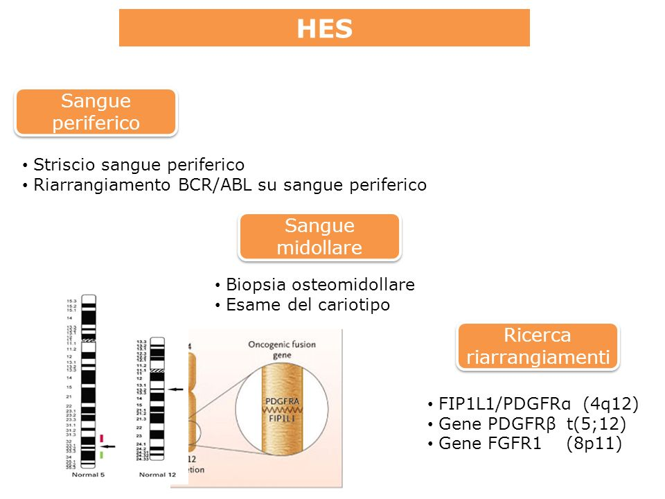 HES Ricerca riarrangiamenti Sangue midollare Sangue periferico Striscio sangue periferico Riarrangiamento BCR/ABL su sangue periferico Biopsia osteomidollare Esame del cariotipo FIP1L1/PDGFRα (4q12) Gene PDGFRβ t(5;12) Gene FGFR1 (8p11)