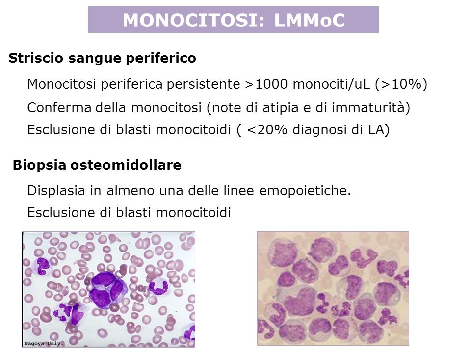 MONOCITOSI: LMMoC Monocitosi periferica persistente >1000 monociti/uL (>10%) Conferma della monocitosi (note di atipia e di immaturità) Displasia in almeno una delle linee emopoietiche.