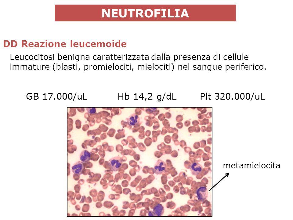 Leucocitosi benigna caratterizzata dalla presenza di cellule immature (blasti, promielociti, mielociti) nel sangue periferico.