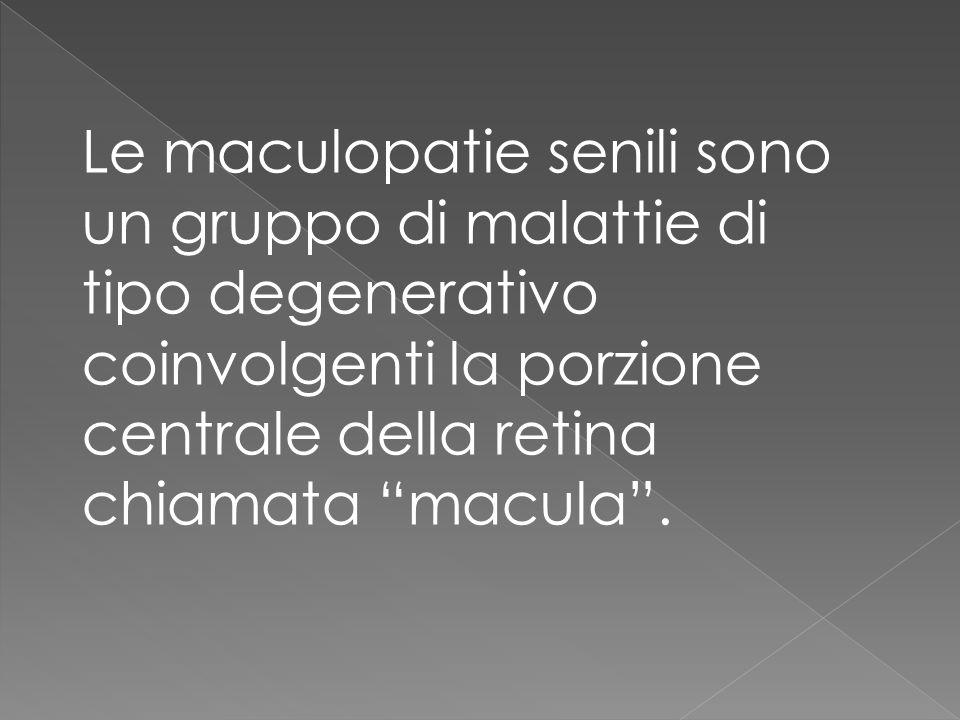 Le maculopatie senili sono un gruppo di malattie di tipo degenerativo coinvolgenti la porzione centrale della retina chiamata macula.