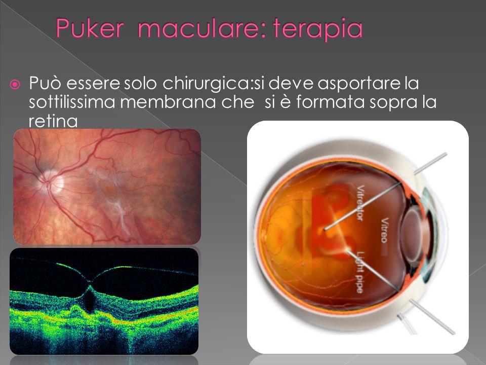 Può essere solo chirurgica:si deve asportare la sottilissima membrana che si è formata sopra la retina