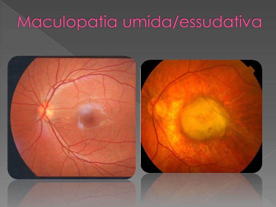 Legata alletà Danneggia la macula Deteriora il campo visivo centrale Principale causa di cecità legale dopo i 50 anni Non determina cecità assoluta