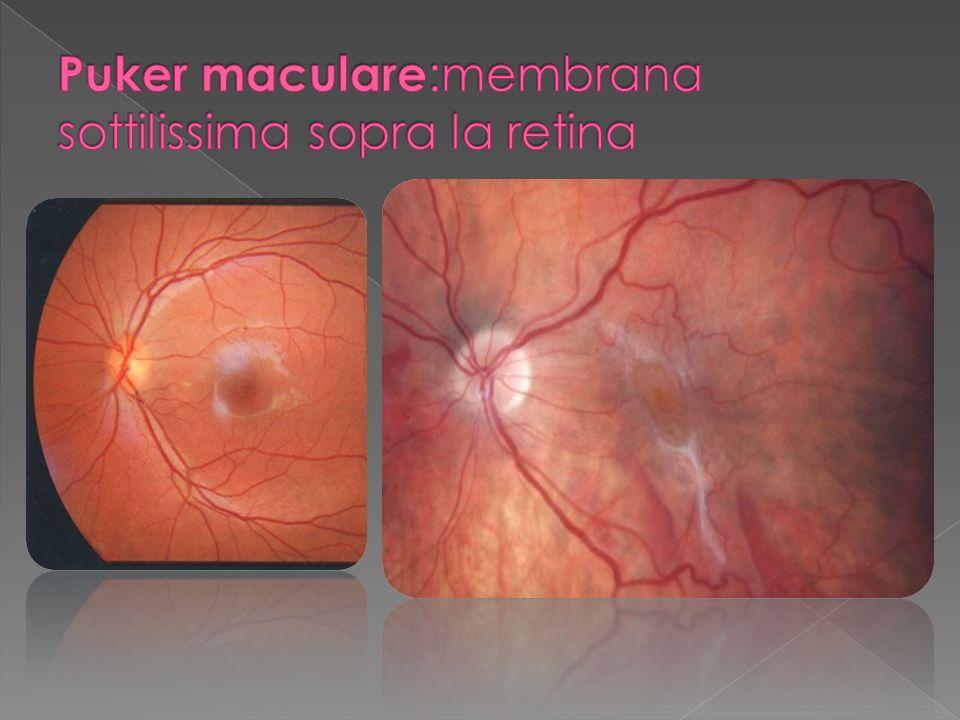 Nessun segno per la ottima visione dellocchio adelfo Iniziali distorsioni delle immagini (metamorfopsie) Difetti del campo visivo centrale Scotoma (macchia nera) centrale