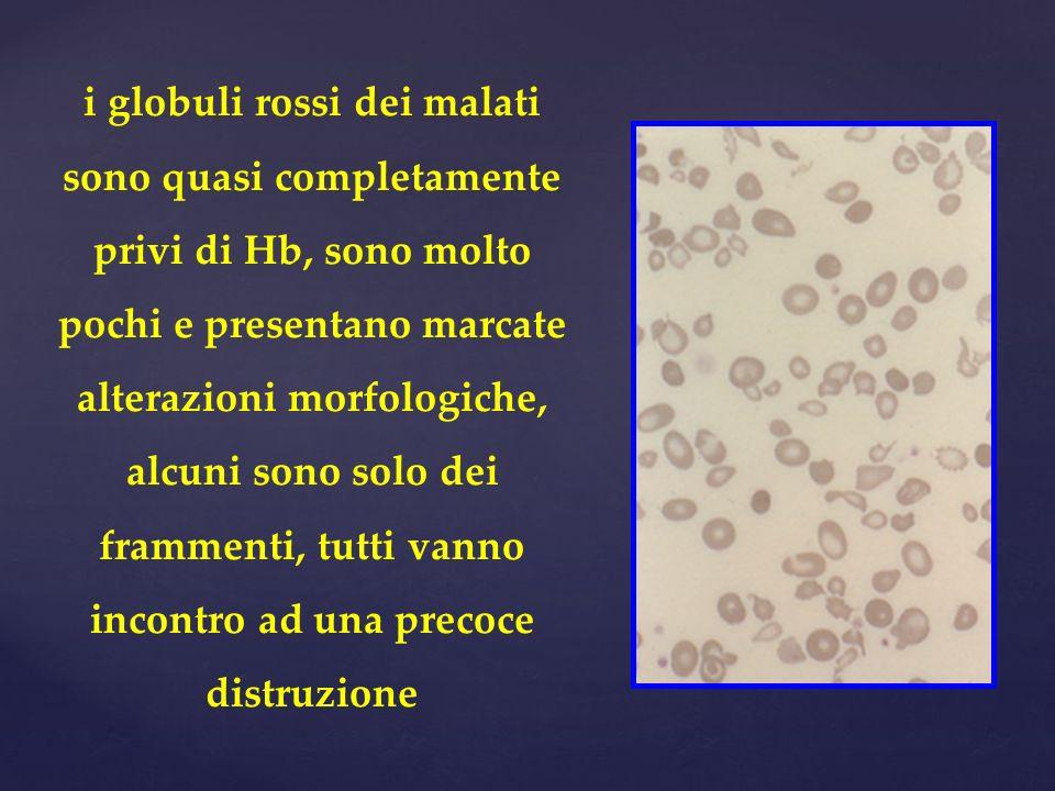 i globuli rossi dei malati sono quasi completamente privi di Hb, sono molto pochi e presentano marcate alterazioni morfologiche, alcuni sono solo dei
