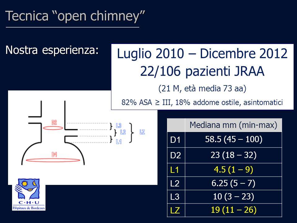 Tecnica open chimney Nostra esperienza: Luglio 2010 – Dicembre 2012 22/106 pazienti JRAA (21 M, età media 73 aa) 82% ASA III, 18% addome ostile, asint