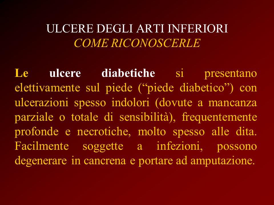 ULCERE DEGLI ARTI INFERIORI COME RICONOSCERLE Le ulcere diabetiche si presentano elettivamente sul piede (piede diabetico) con ulcerazioni spesso indo