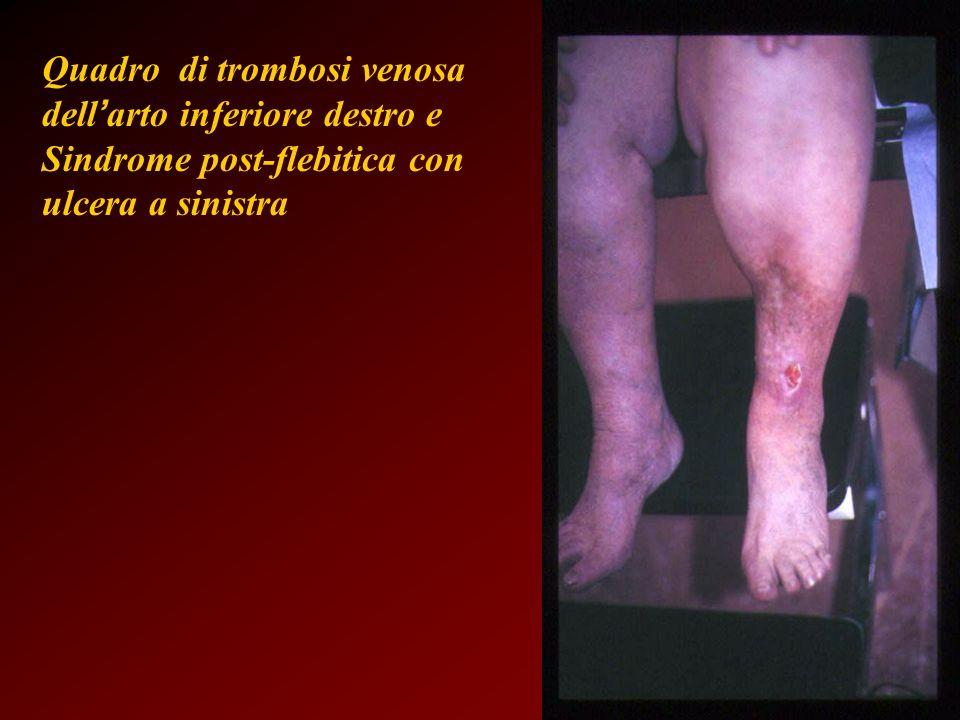 Quadro di trombosi venosa dell arto inferiore destro e Sindrome post-flebitica con ulcera a sinistra