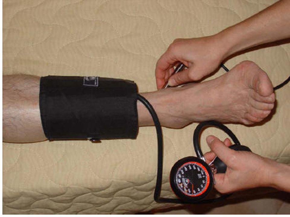 APPROCCIO CLINICO-DIAGNOSTICO ESAMI DI 2° LIVELLO Esami contrastografici Angiografia Flebografia Varicografia Esami emato-chimici specifici Diabete latente Connettivopatie Vasculiti Emopatie Dismetabolismi Esami neurologici Esami ecografici Cuore, aorta, cavi poplitei approccio multidisciplinare (chirurgo vascolare, angioradiologo neurologo cardiologo laboratorista/ematologo)