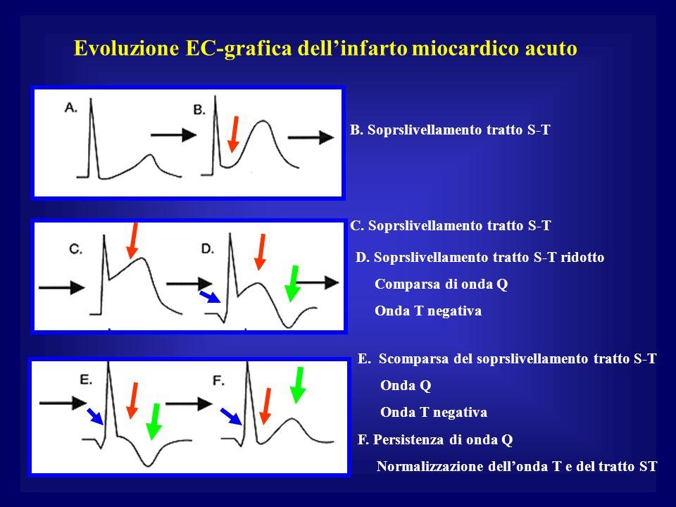 Evoluzione EC-grafica dellinfarto miocardico acuto B. Soprslivellamento tratto S-T C. Soprslivellamento tratto S-T D. Soprslivellamento tratto S-T rid