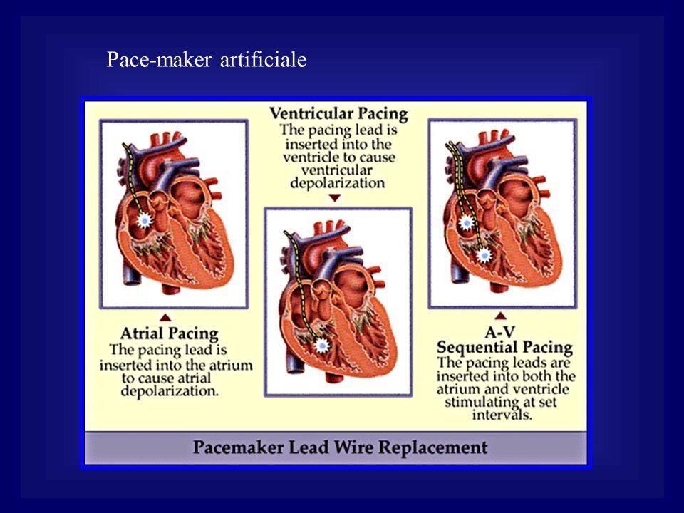 Pace-maker artificiale