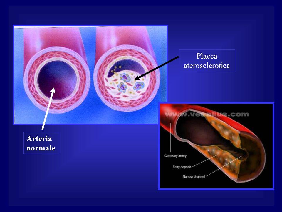 Arteria normale Placca aterosclerotica