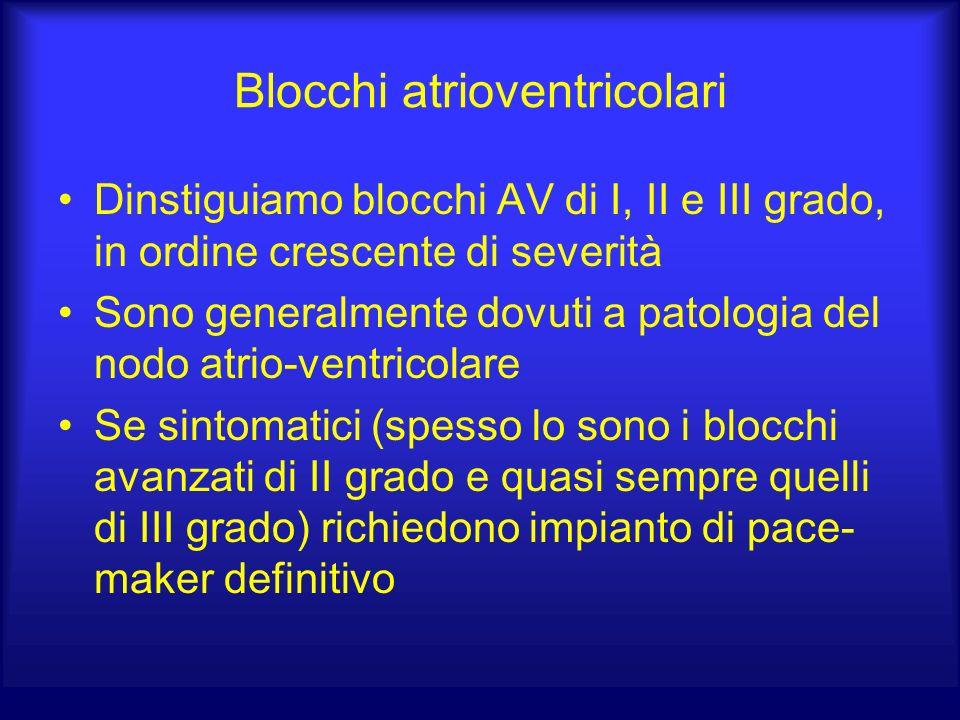 Blocchi atrioventricolari Dinstiguiamo blocchi AV di I, II e III grado, in ordine crescente di severità Sono generalmente dovuti a patologia del nodo