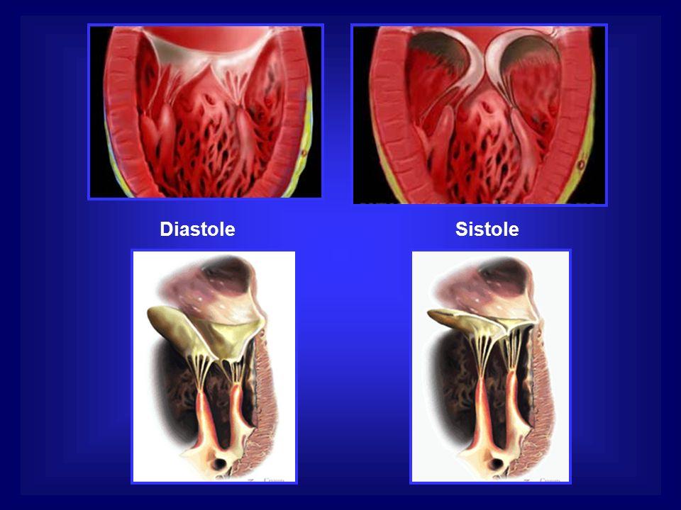 DiastoleSistole