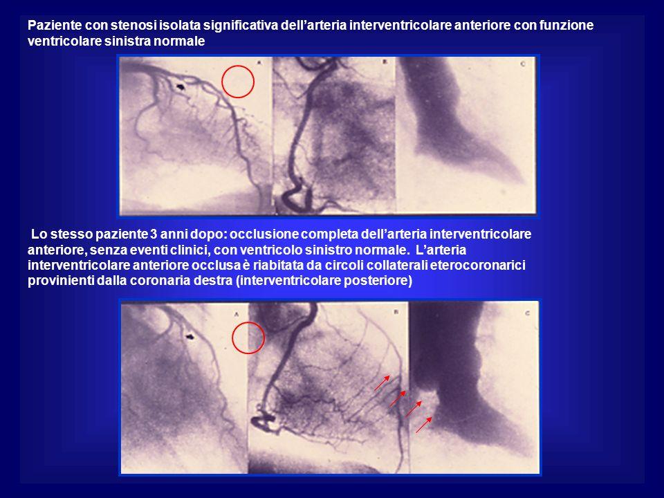 Paziente con stenosi isolata significativa dellarteria interventricolare anteriore con funzione ventricolare sinistra normale Lo stesso paziente 3 anni dopo: occlusione completa dellarteria interventricolare anteriore, senza eventi clinici, con ventricolo sinistro normale.