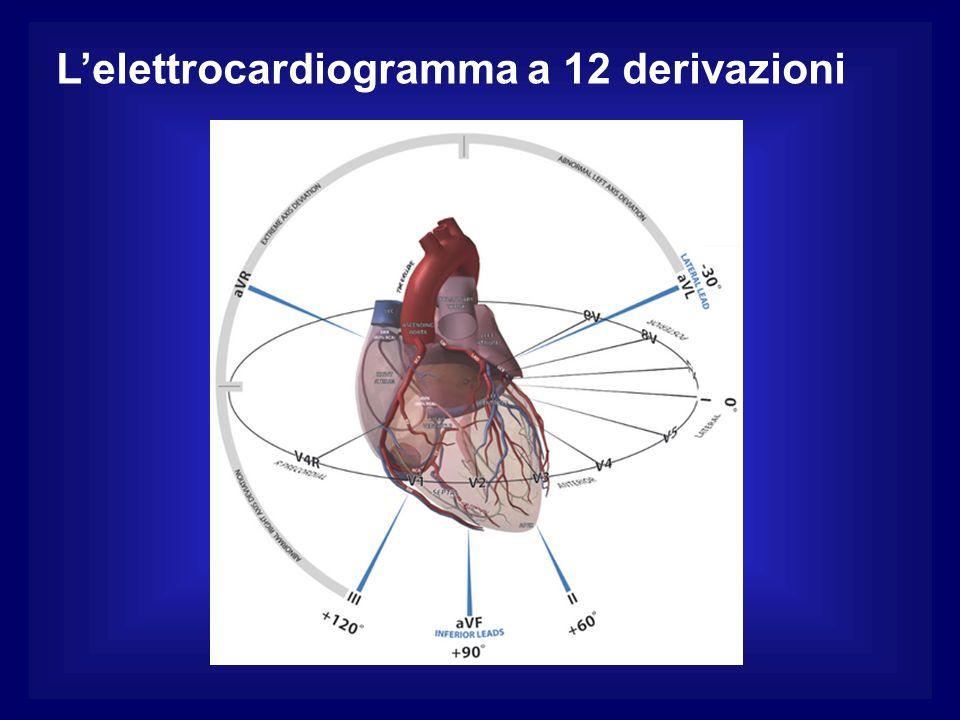 Lelettrocardiogramma a 12 derivazioni
