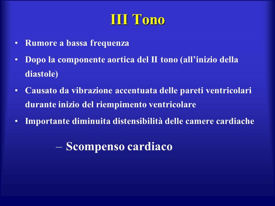 III Tono Rumore a bassa frequenza Dopo la componente aortica del II tono (allinizio della diastole) Causato da vibrazione accentuata delle pareti ventricolari durante inizio del riempimento ventricolare Importante diminuita distensibilità delle camere cardiache – Scompenso cardiaco