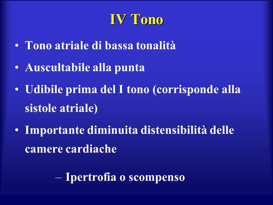 IV Tono Tono atriale di bassa tonalità Auscultabile alla punta Udibile prima del I tono (corrisponde alla sistole atriale) Importante diminuita distensibilità delle camere cardiache – Ipertrofia o scompenso