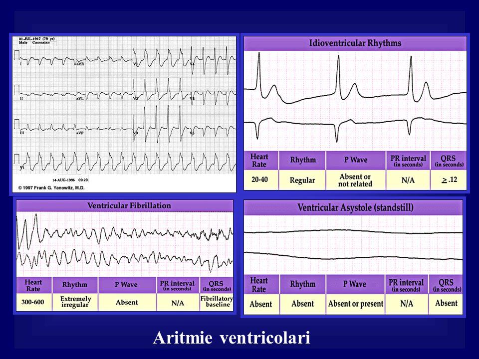 Aritmie ventricolari