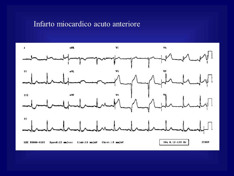Infarto miocardico acuto anteriore