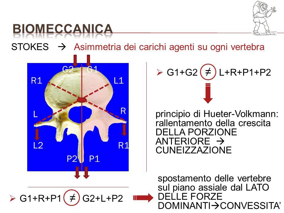 G1G2 R1L2 P2P1 R1 L L1 R STOKES Asimmetria dei carichi agenti su ogni vertebra principio di Hueter-Volkmann: rallentamento della crescita DELLA PORZIO