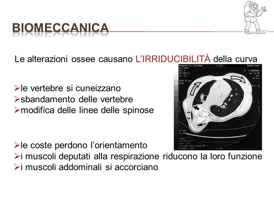 Le alterazioni ossee causano LIRRIDUCIBILITÀ della curva le vertebre si cuneizzano sbandamento delle vertebre modifica delle linee delle spinose le co