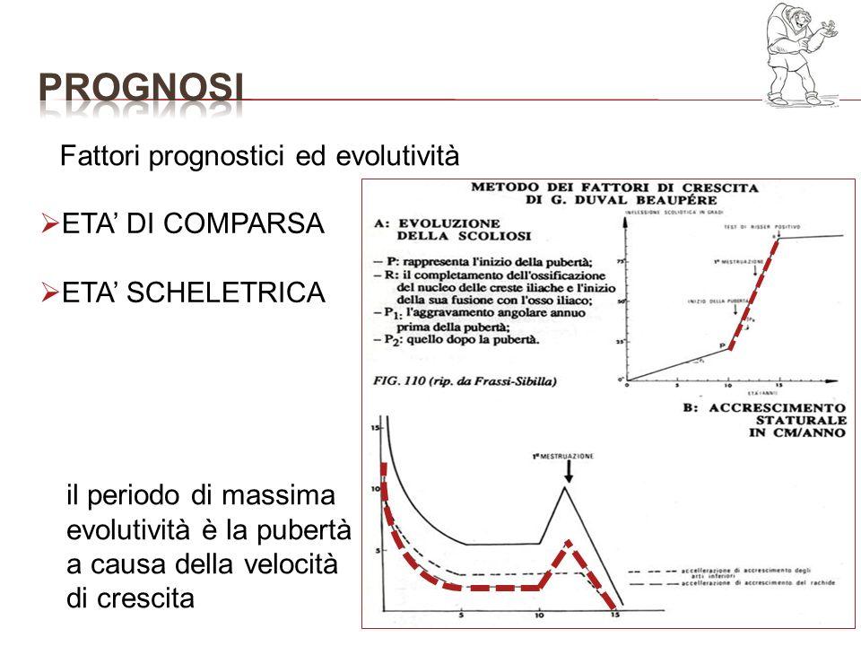 Fattori prognostici ed evolutività ETA DI COMPARSA ETA SCHELETRICA il periodo di massima evolutività è la pubertà a causa della velocità di crescita