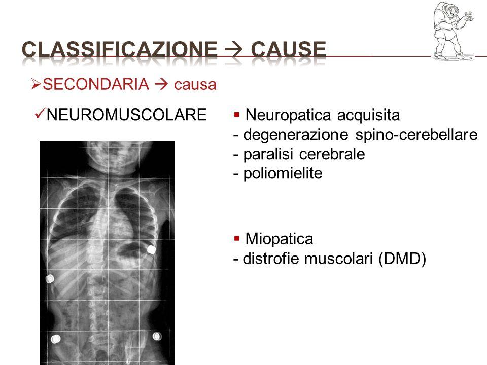 NEUROMUSCOLARE Neuropatica acquisita - degenerazione spino-cerebellare - paralisi cerebrale - poliomielite Miopatica - distrofie muscolari (DMD) SECON