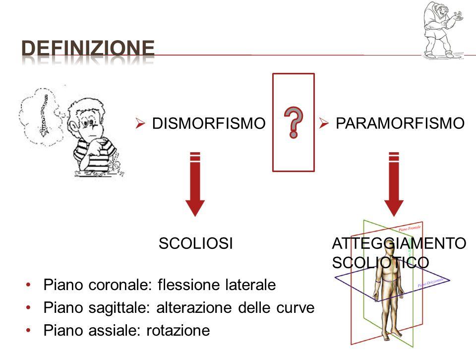 ATTEGGIAMENTO SCOLIOTICO SCOLIOSI PARAMORFISMO Piano coronale: flessione laterale Piano sagittale: alterazione delle curve Piano assiale: rotazione DI