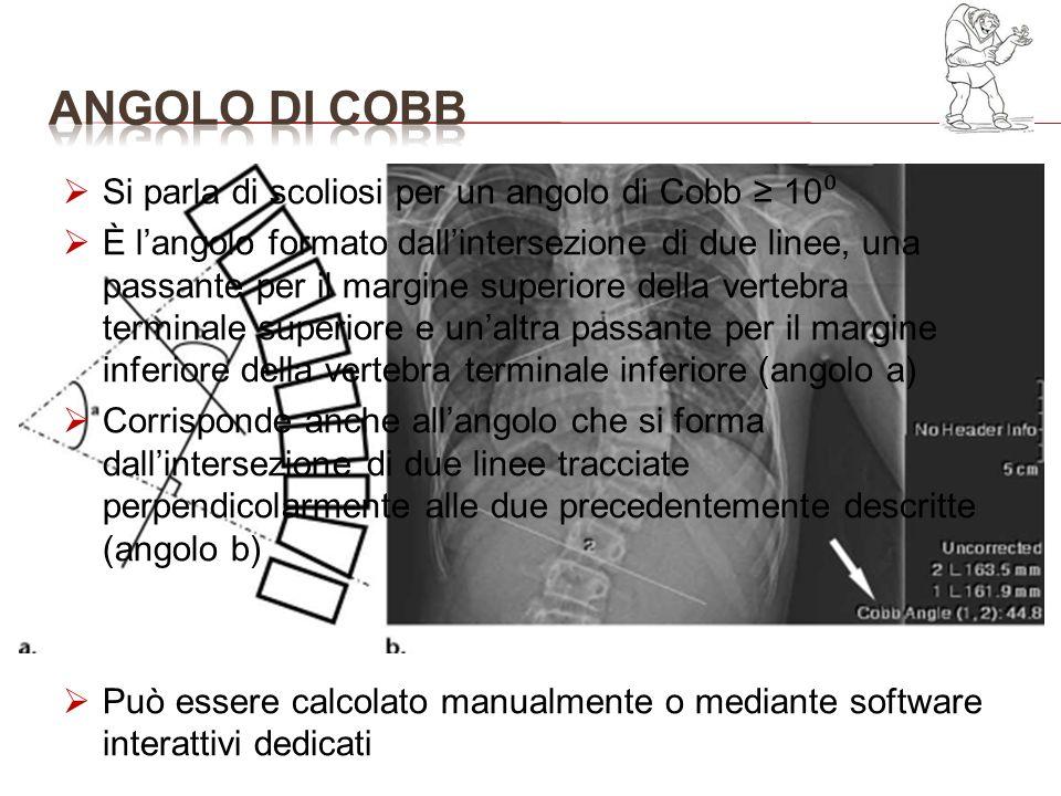 Si parla di scoliosi per un angolo di Cobb 10º Si parla di scoliosi per un angolo di Cobb 10 È langolo formato dallintersezione di due linee, una pass