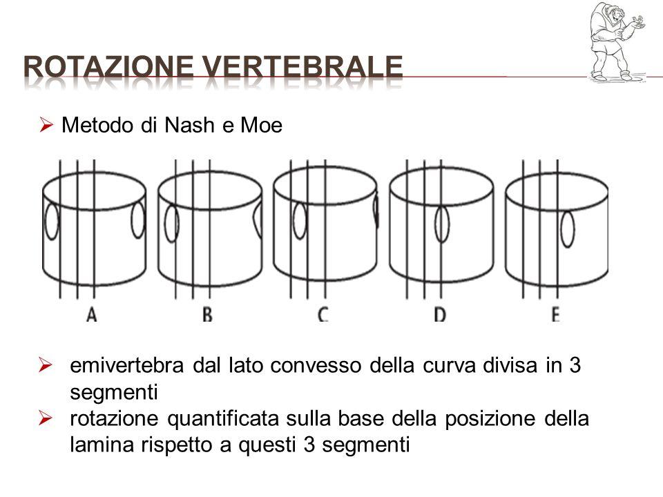 Metodo di Nash e Moe emivertebra dal lato convesso della curva divisa in 3 segmenti rotazione quantificata sulla base della posizione della lamina ris