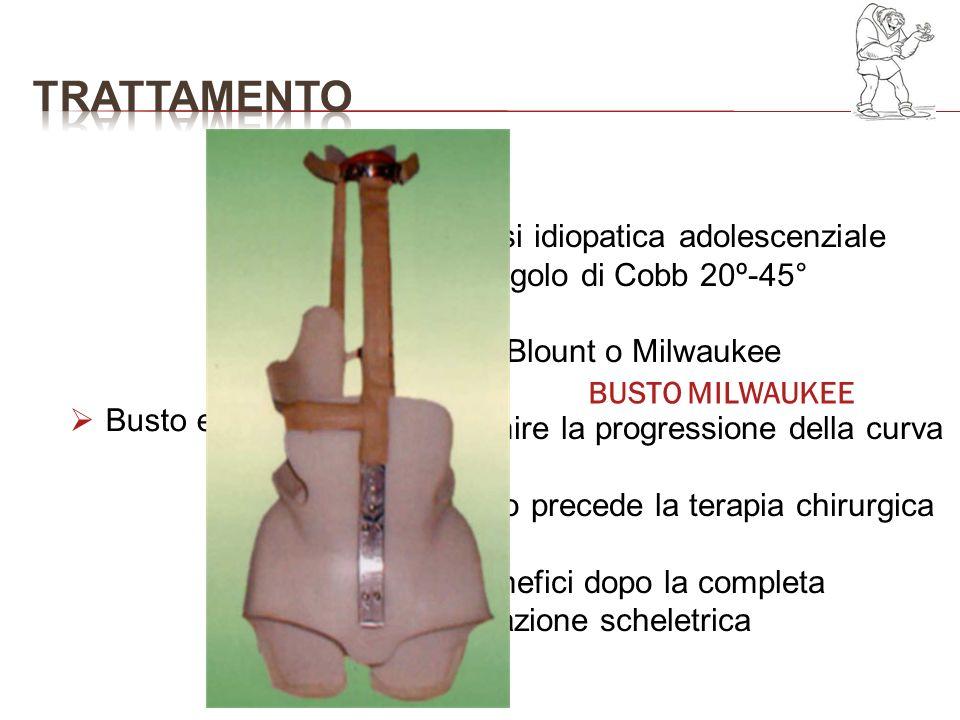 Busto e FKT Scoliosi idiopatica adolescenziale con angolo di Cobb 20º-45° Busto Blount o Milwaukee Prevenire la progressione della curva Spesso preced