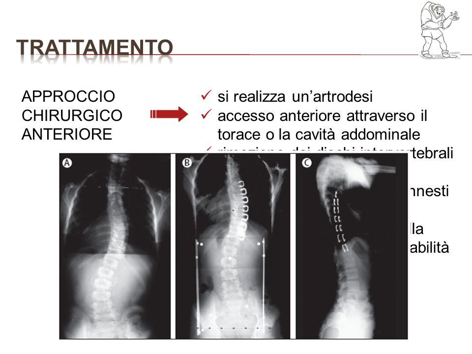 APPROCCIO CHIRURGICO ANTERIORE si realizza unartrodesi accesso anteriore attraverso il torace o la cavità addominale rimozione dei dischi intervertebr