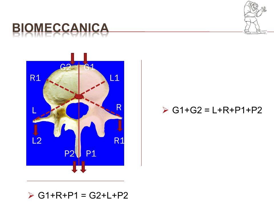 G1G2 R1L2 P2P1 R1 L L1 R STOKES Asimmetria dei carichi agenti su ogni vertebra principio di Hueter-Volkmann: rallentamento della crescita DELLA PORZIONE ANTERIORE CUNEIZZAZIONE G1+G2 L+R+P1+P2 G1+R+P1 G2+L+P2 spostamento delle vertebre sul piano assiale dal LATO DELLE FORZE DOMINANTI CONVESSITA