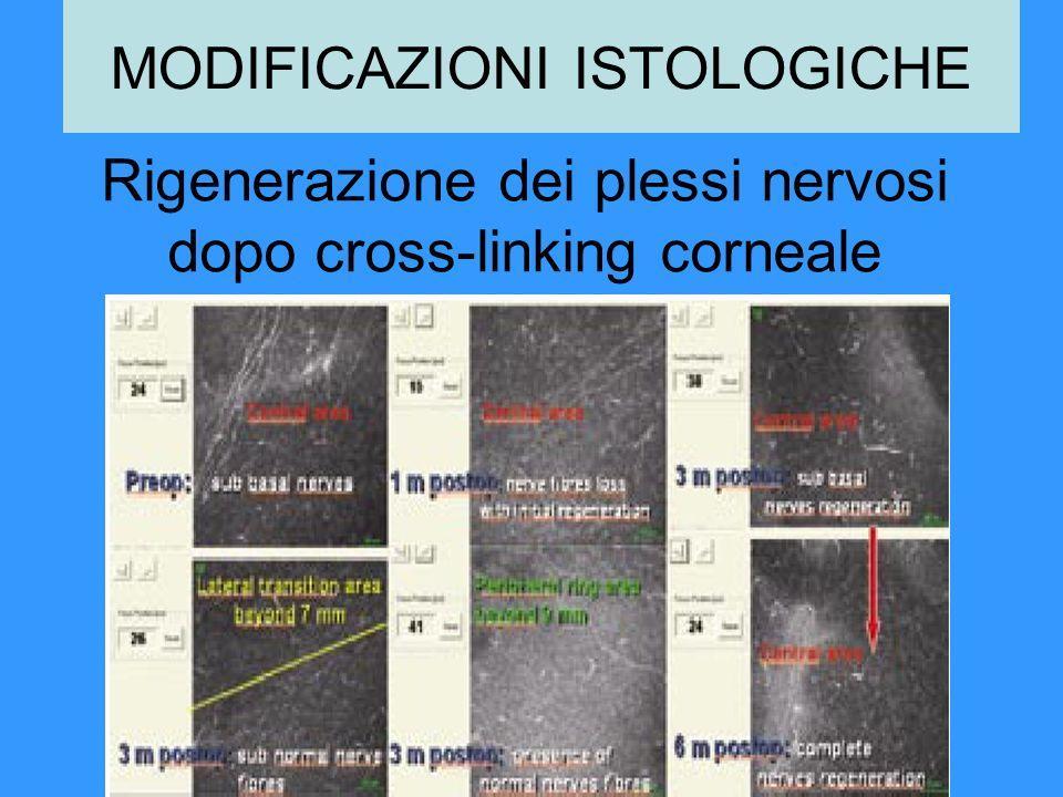 Rigenerazione dei plessi nervosi dopo cross-linking corneale MODIFICAZIONI ISTOLOGICHE